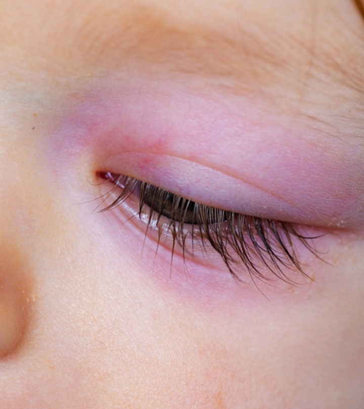 Swollen Eye in Babies: Causes, Treatment And Home Remedies