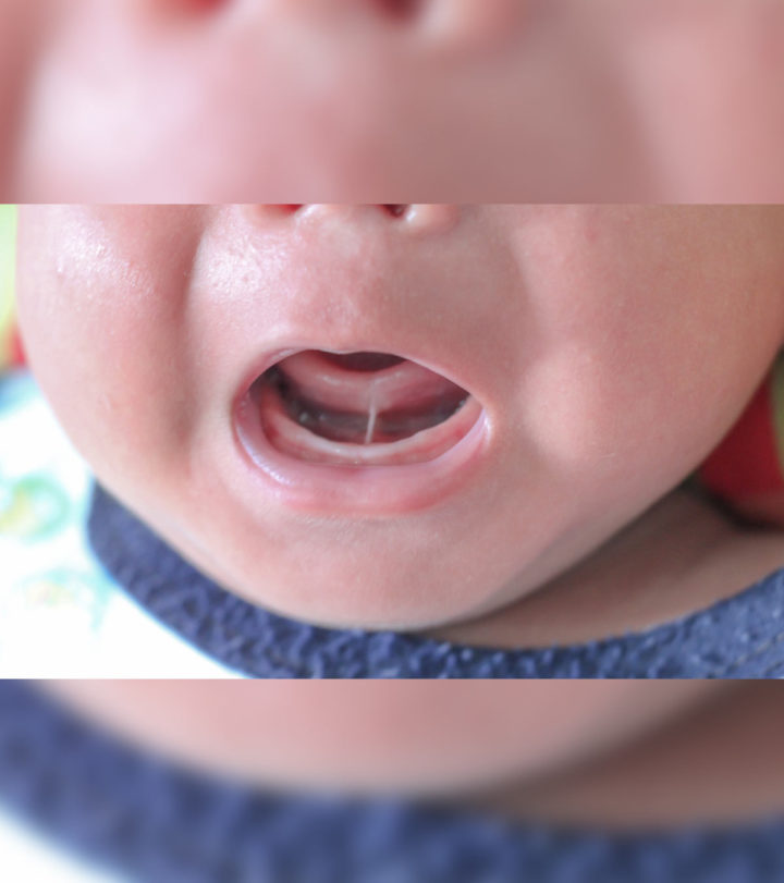 Tongue-tied Baby Symptoms, Causes And Treatment-1