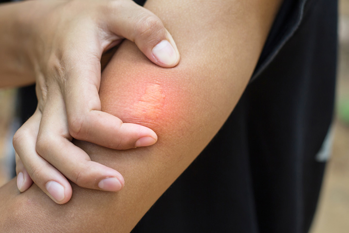 What Does A Bee Sting Look And Feel Like?