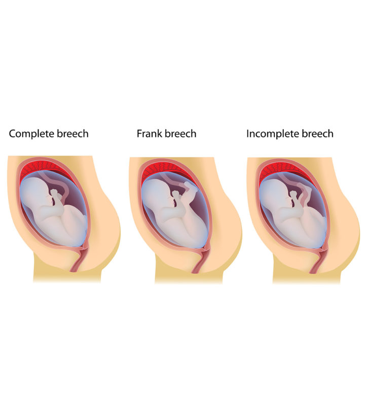 7 Common Breech Baby Birth Defects And How To Prevent Them