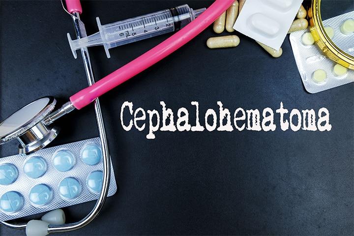 Cephalohematoma In Newborns