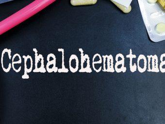 Cephalohematoma In Newborns: Symptoms, Causes, And Treatment