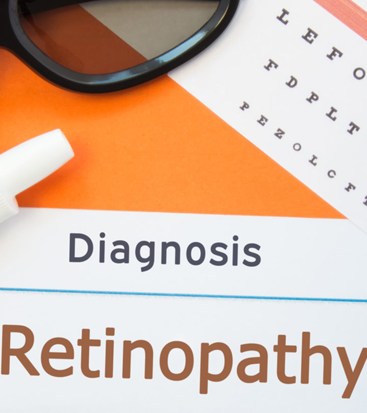 ROP (Retinopathy Of Prematurity) In Babies: Causes, Symptoms And Treatment