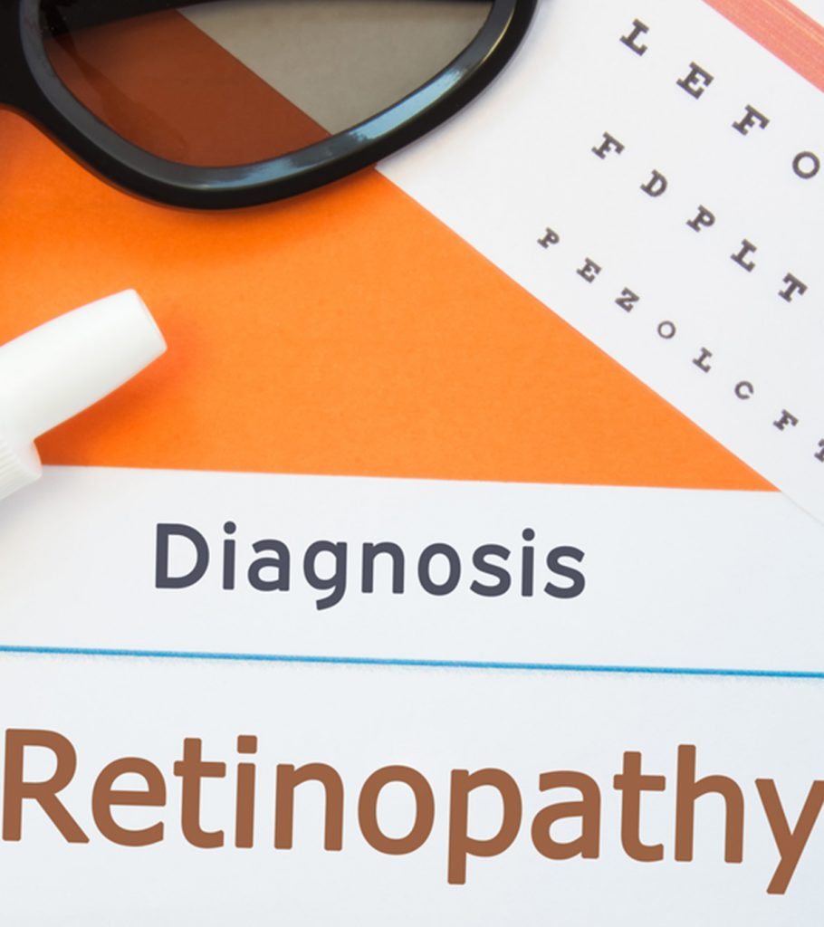 ROP Retinopathy Of Prematurity In Babys Causes Symptoms And Treatment 910x1024