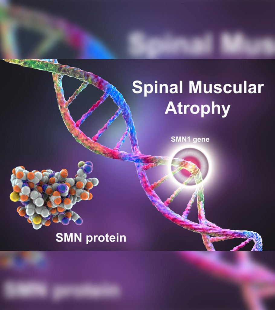 Spinal Muscular Atrophy SMA In Infants Types Causes And Management 910x1024
