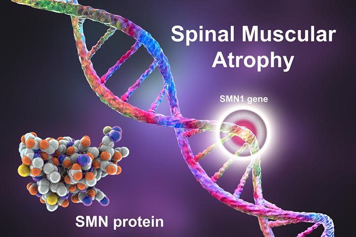 Spinal Muscular Atrophy in Infants Types, Causes And Management-1