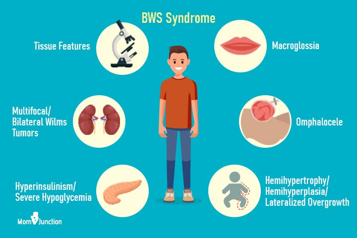 Beckwith-Wiedemann Syndrome: Symptoms, Causes And Treatment