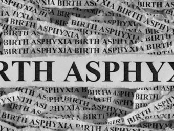Birth Asphyxia: Symptoms, Causes And Treatment