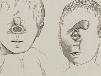 Cyclopia Baby: Causes, Diagnosis And Life Expectancy