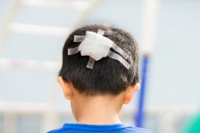 बच्चों के सिर में चोट लगना: प्रकार, कारण, इलाज व जटिलताएं | Head Injury in Children in Hindi