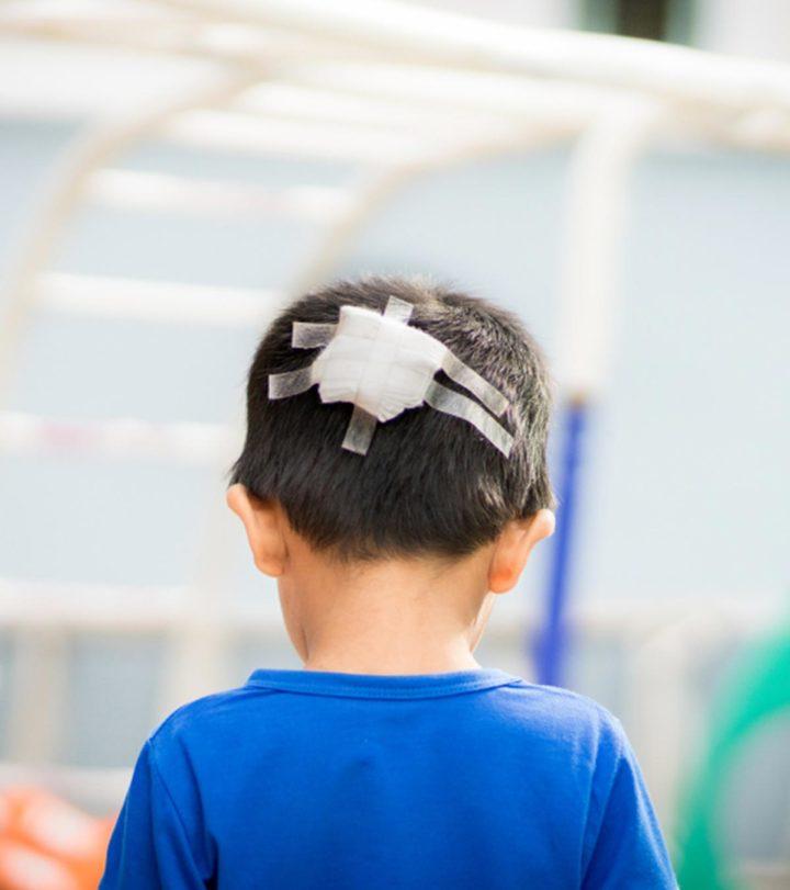 Head Injury in Children in Hindi