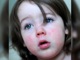 Scarlet Fever In Children: Symptoms, Causes, Risks, And Treatment