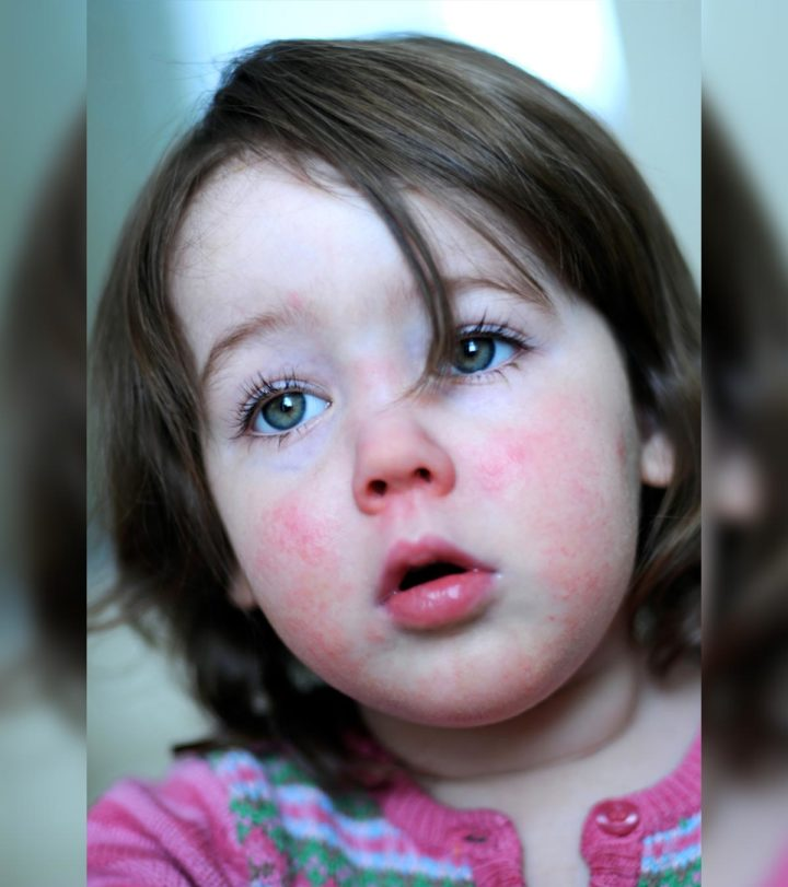 Scarlet Fever In Children Symptoms, Causes, Risks, And Treatment-1