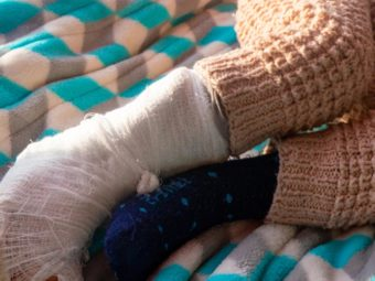 Toddler's Fracture: Causes, Symptoms, And Treatment