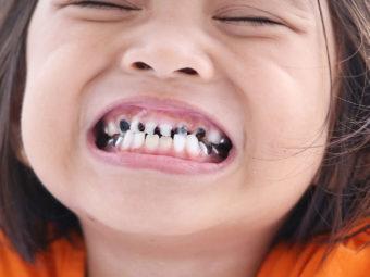 बच्चों के दांतों में कीड़े :  कारण, लक्षण, ट्रीटमेंट व  घरेलू उपाय | Tooth Decay In Kids In Hindi