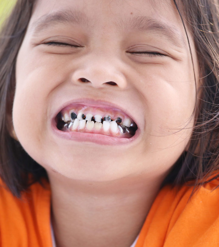 Tooth Decay In Kids In Hindi