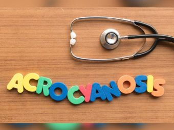 Acrocyanosis In Newborn: Causes, Symptoms, Diagnosis And Treatment
