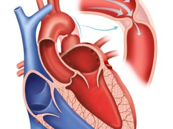 Coarctation Of The Aorta (COA) In Infants: Causes, Symptoms And Treatment
