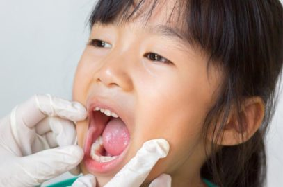 Epiglottitis In Children: Symptoms, Causes, Treatment And Prevention