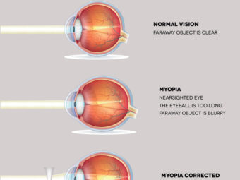 Myopia In Children: Causes, Symptoms, Treatment And Prevention