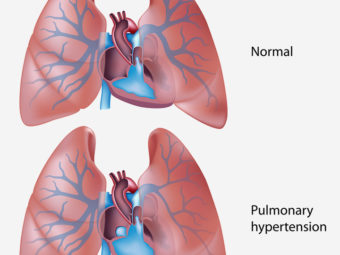 Persistent Pulmonary Hypertension Of The Newborn (PPHN): Causes And Treatment