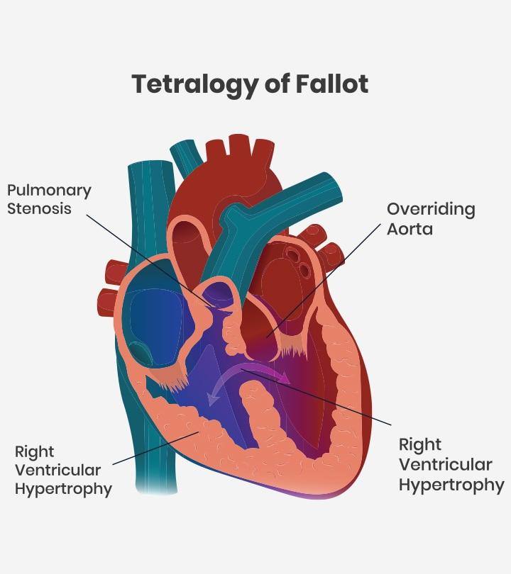 Tetralogy Of Fallot TOF In Babies