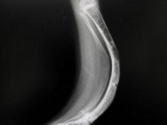 Osteogenesis Imperfecta (Brittle Bone Disease): Symptoms And Treatment