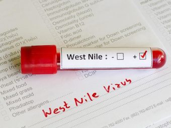 West Nile Virus In Children: Symptoms, Complications, And Prevention