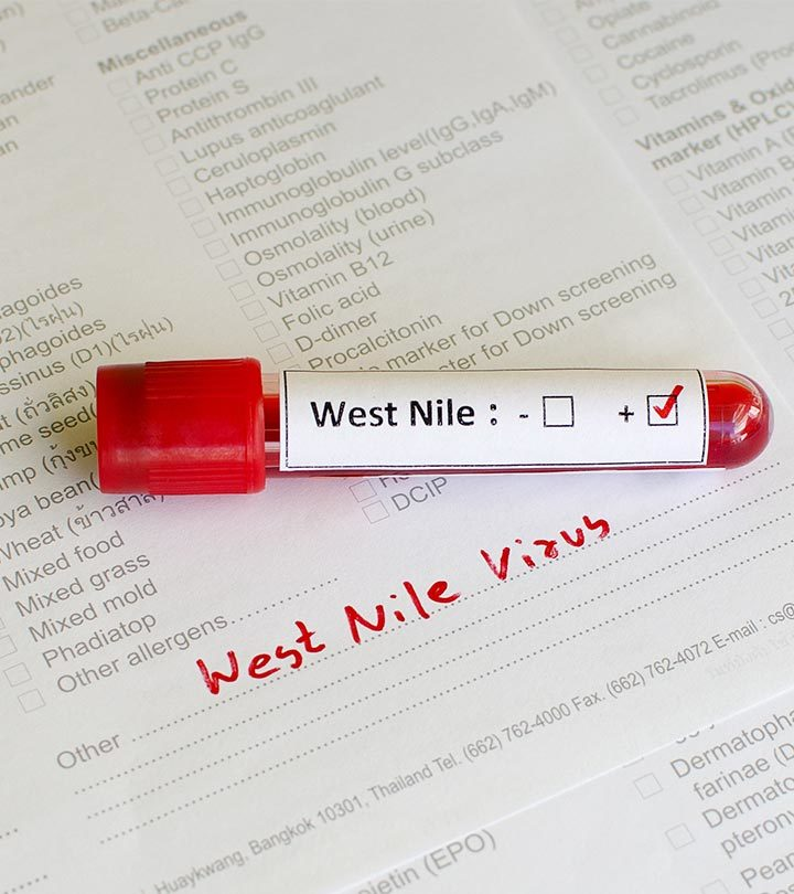 West Nile Virus In Children Symptoms, Complications, And Prevention
